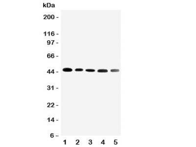 CBG Antibody Cortisol Binding Globulin