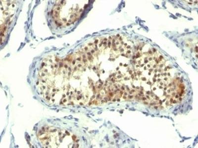 Thymidylate Synthase Antibody (Mouse Monoclonal)