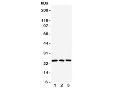 Rab11 Antibody