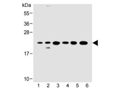 KRAS Antibody