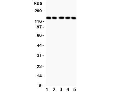 Collagen II Antibody / COL2A1