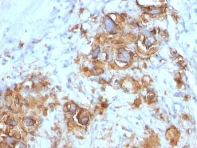 CA19-9 Antibody (Mouse Monoclonal)