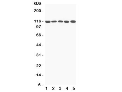 C5a Antibody Complement 5a