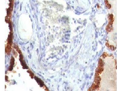 KRT7 Antibody / Cytokeratin 7 (Mouse Monoclonal)