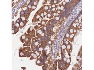 Cytosolic Sulfotransferase 1A1 / SULT1A1 Antibody