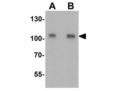 Anti-TIF1 alpha antibody
