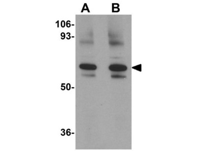 Anti-GOLPH2 antibody
