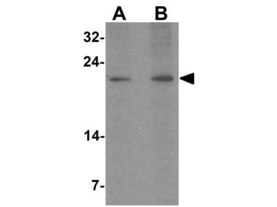 Anti-LYZL1 antibody