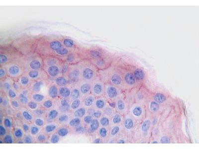 Anti-PDGF-AA antibody