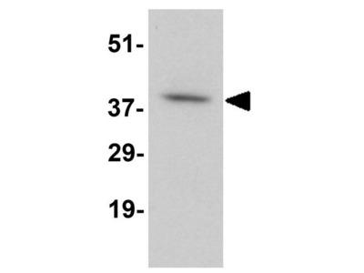 Anti-DARC antibody