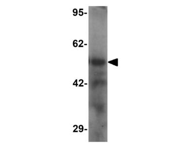 Anti-TTYH2 antibody