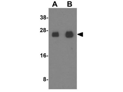 Anti-Connexin 26 antibody