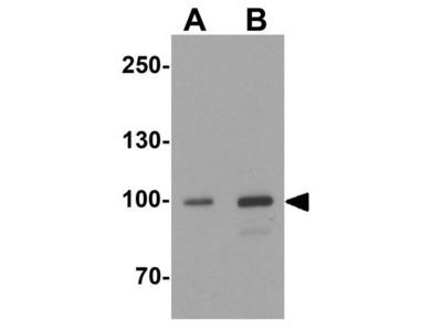 Anti-AKAP 82 antibody
