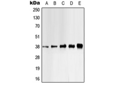 Anti-Casein Kinase 1 alpha (phospho Tyr321) antibody