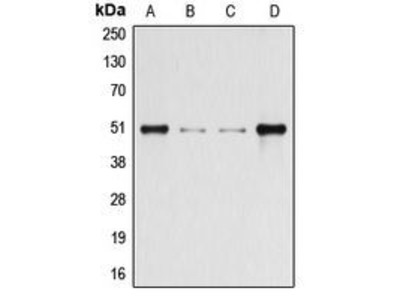 Anti-beta Arrestin 1 (phospho Ser412) antibody