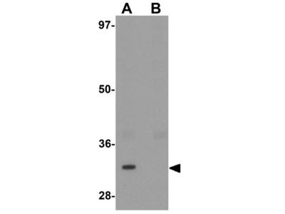 Anti-TYW3 antibody