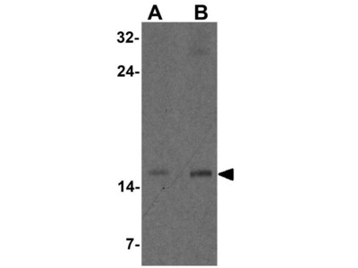 Anti-CISD2 antibody