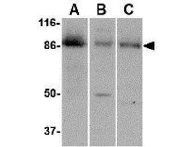 Anti-CCK4 antibody