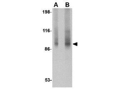 Anti-TNPO3 antibody