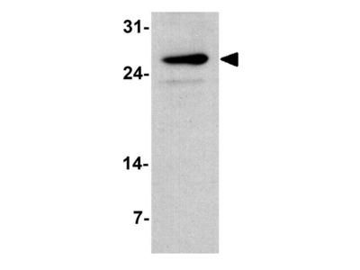 Anti-TMIGD2 antibody