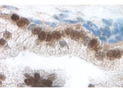 Anti-CCL21 antibody