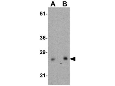 Anti-CTHRC1 antibody