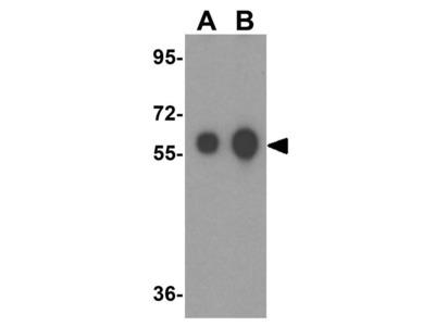 Anti-ALDH5A1 antibody