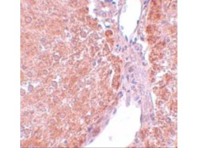 Anti-SUMO3 antibody
