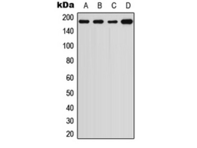 Anti-alpha 2 Macroglobulin antibody