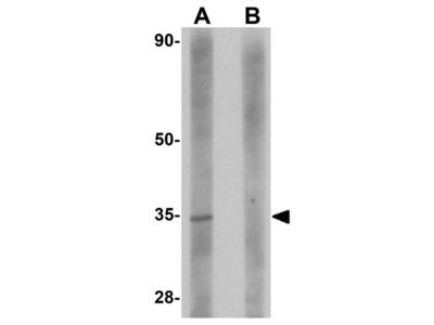Anti-SDHAF2 antibody