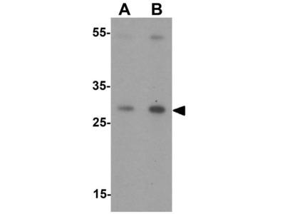 Anti-CITED2 antibody