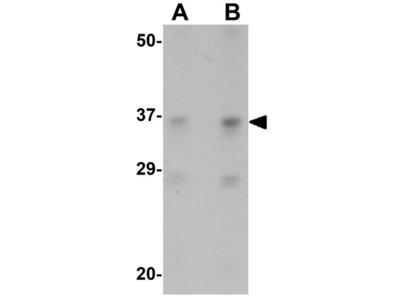 Anti-SOX2 antibody