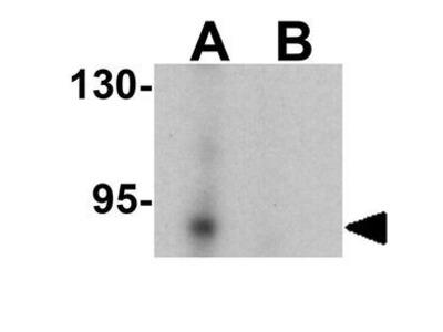 Anti-LSD2 / AOF1 antibody