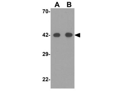 Anti-SIGLEC15 antibody