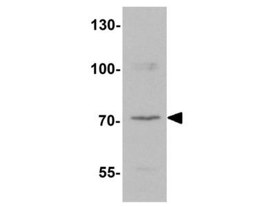 Anti-LZTS2 antibody