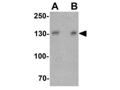 Anti-PPFIA3 antibody