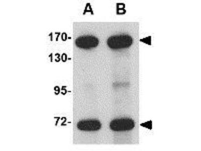 Anti-NUP160 antibody