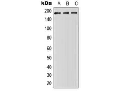 Anti-ABCA5 antibody
