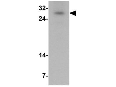 Anti-SIVA antibody