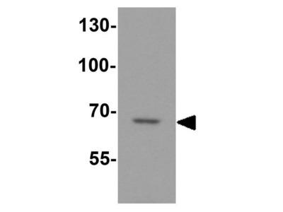 Anti-DTX4 antibody
