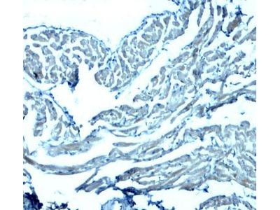 Anti-GAS6 antibody