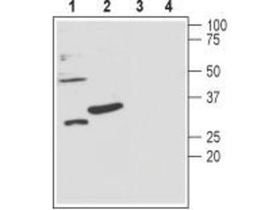 Anti-KCNMB3 antibody