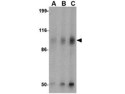 Anti-GluR6 antibody
