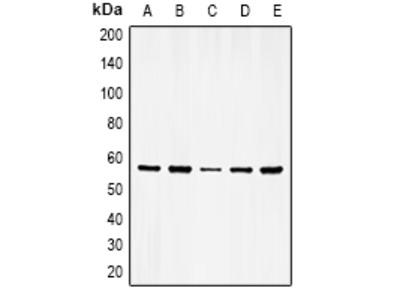 Anti-Vimentin (phospho Ser56) antibody