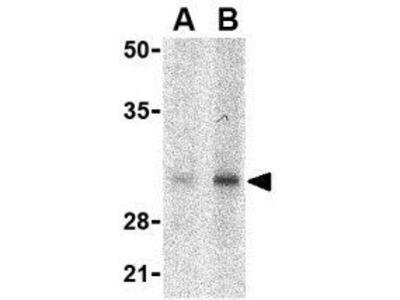Anti-SLUG antibody