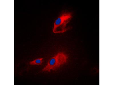 Anti-ACOT8 antibody