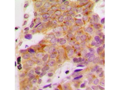 Anti-p70 S6K (phospho Ser418) antibody