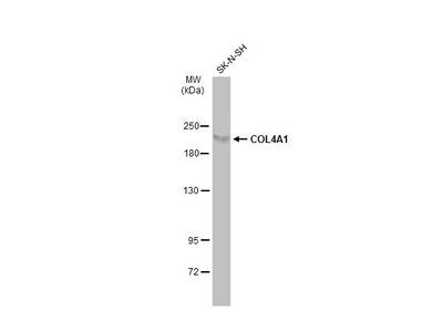 Anti-COL4A1 antibody