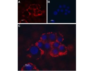 Anti-TRPC1 antibody