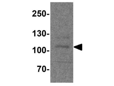 Anti-PACS1 antibody